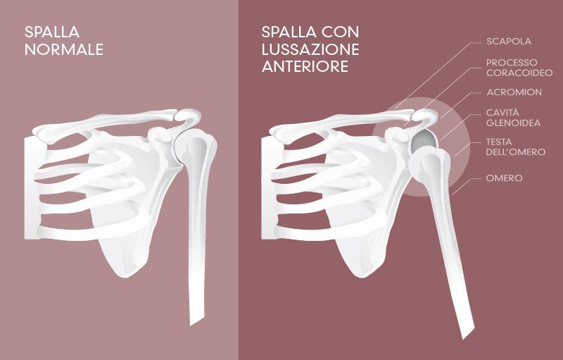 Sublussazione della spalla